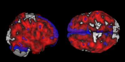 Two Views Of Amyloid-Beta Deposits In Composite Brain: Credit: Lisa Mosconi, Ph.D., Mony J. de Leon, Ed.D.