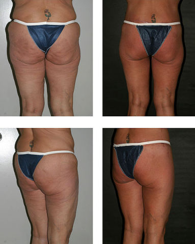 Buttocks lift: before and after: image via realself.com