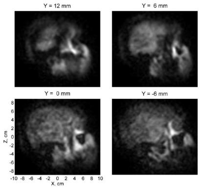 Images from first brain MRI