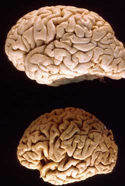 Normal brain (above) with Alzheimer's brain (below): image via rejuvenal.info