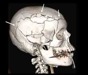 CT image shows multiple skull and facial bone fractures resulting from fatal blunt trauma to the head in a pedestrian struck by a car. Arrows point to some of the fractures.