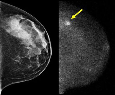 mammography a special imaging method in Mammography performed by an accredited and fda- certified mammographic  imaging program provided is the most reliable method currently used to detect.