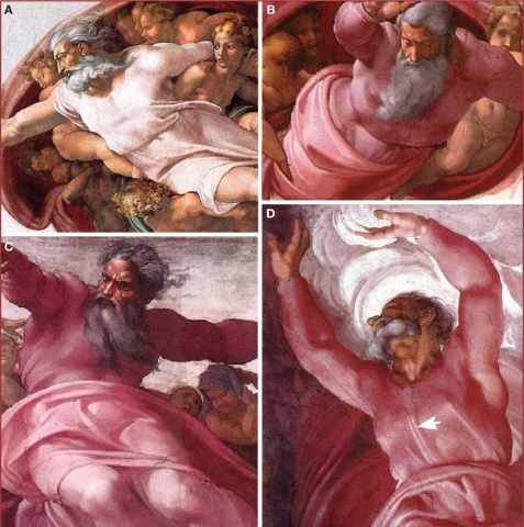 The fourth panel, showing God in the 'Separation of Light From Darkness' depicts a ventrel view of the brainstem: images by authors Ian Suk and Rafael Tamargo, via Neurosurgery