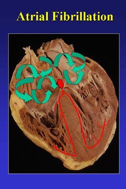 Atrial Fibrillation: image via Texas Arrhythmia Institute