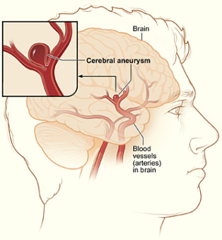 An Aneurysm (courtesy NIH)
