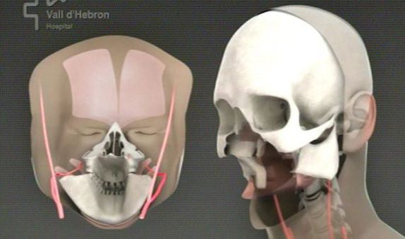 Face transplant: Computer generated image, Vall d&#039;Hebron University Hospital