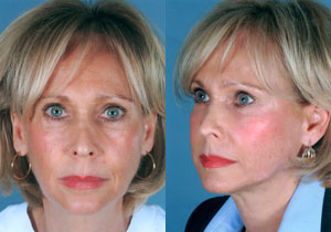 Before & After Stem Cell Facelift (Institute for Anti-Aging Medical Therapy)