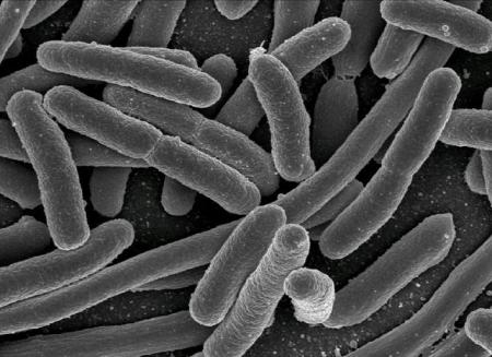 Scanning electron micrograph of Escherichia coli. (Credit: Rocky Mountain Laboratories, NIAID, NIH)