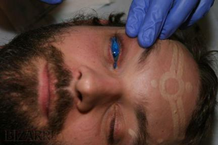 This Toronto man was the first man to get an eyeball tattoo, in his cornea.