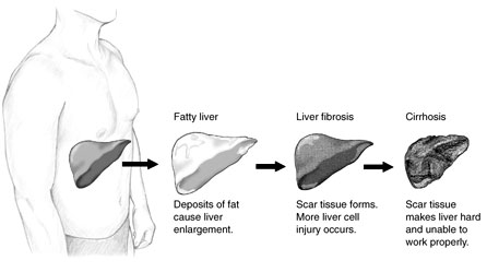 Stages of liver disease (from digestive.niddk.nih.gov)