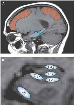 Amyloid plaques in living brain via PET and MRI technologies: from: Dan E Huddleston & Scott A Small. Nature Clinical Practice Neurology (2005)