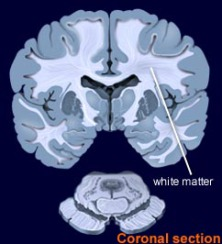 White matter (via BrainExplorer.org)